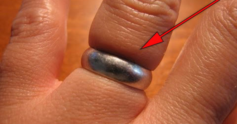 Here S How You Can Easily Remove A Stuck Ring From A